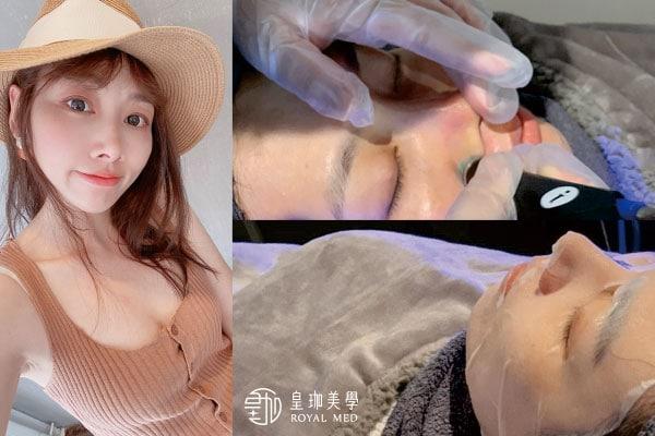 【皮膚保養達人祕密】簡單還原最健康又乾淨の肌膚|海菲秀台北醫美