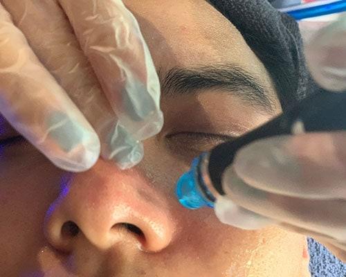 男生也瘋狂|海菲秀保養方法讓肌膚乾淨透亮!【男性臉部去角質保養推薦】