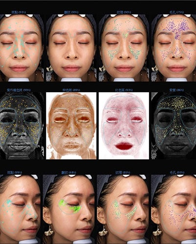 智慧肌膚檢測儀 VISIA檢測過程