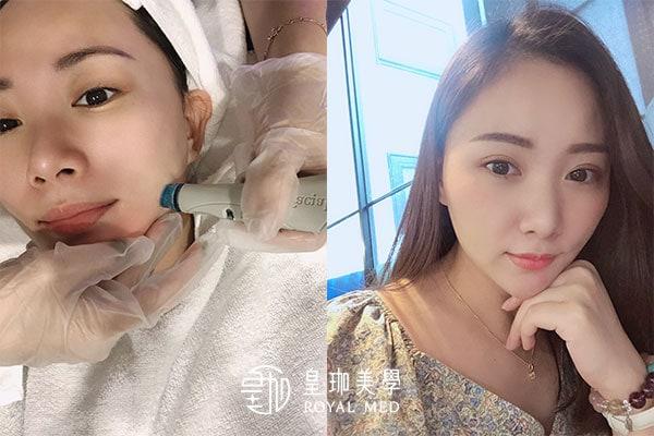 【台北水飛梭體驗心得】資深美容師愛上海菲秀~肌膚亮的沒話說!