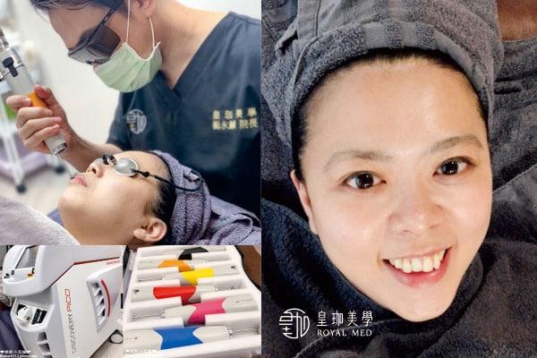 #心得分享 探索皮秒改善毛孔粗大、痘疤問題【個人專屬醫美】台北皇珈