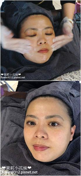 #心得分享 探索皮秒改善毛孔粗大、痘疤問題【個人專屬醫美】
