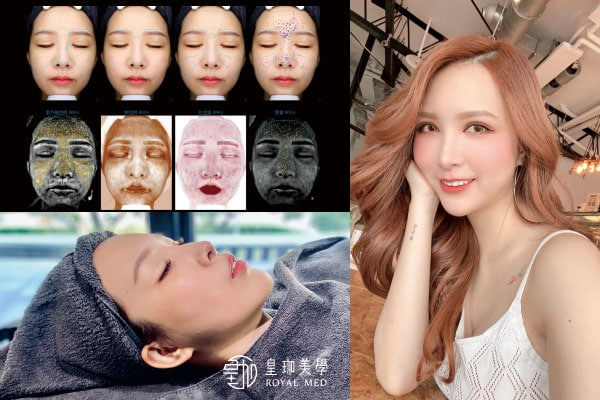 海菲秀功效徹底將肌膚大改造:清潔x活膚x換膚一次搞定!拒絕鬧肌荒