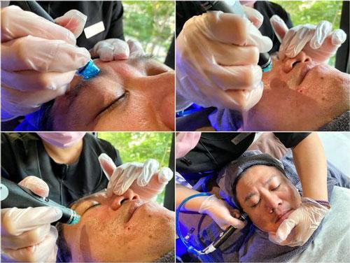 """海菲秀+探索皮秒雷射""""一次就見效😍30天後毛孔痘疤真的變縮小變平👍👍👍"""