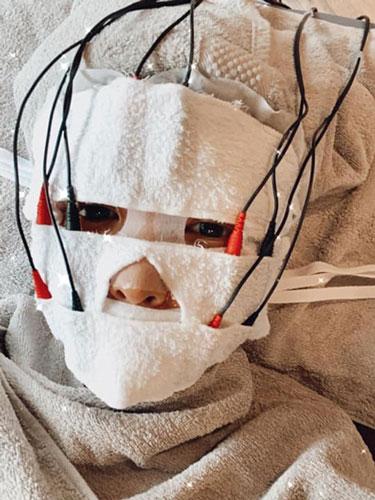 #分享心得 海菲秀(水飛梭)清除千年老粉刺 取代傳統做臉安全無痛深層清潔|不老娃娃 芳瑜