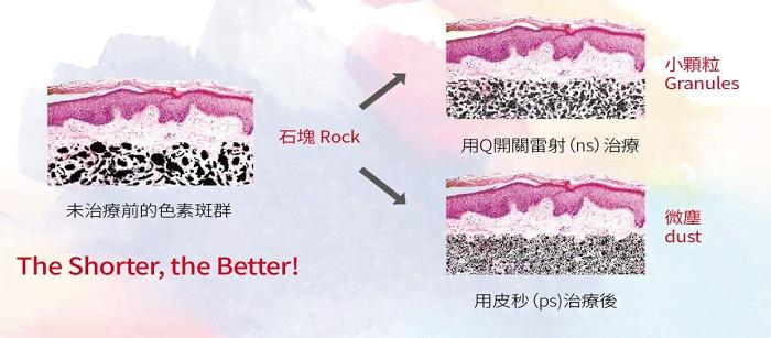 皮秒與奈秒治療黑色素的差異比較