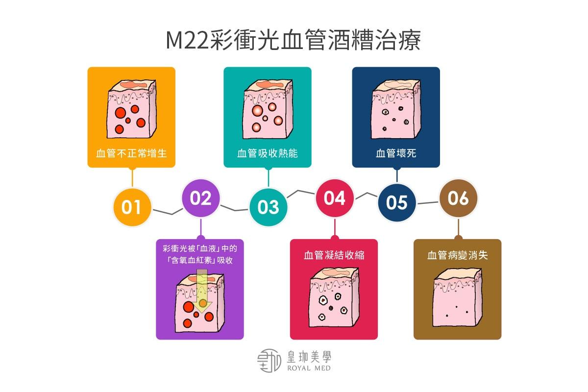 M22彩衝光血管酒糟治療