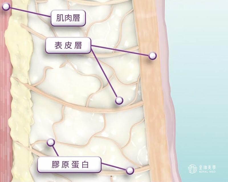 鳳凰電波FLX治療原理-未治療前
