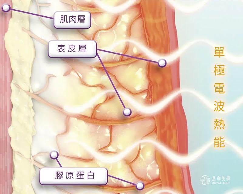 鳳凰電波FLX治療原理-治療後膠原蛋白持續新生重組