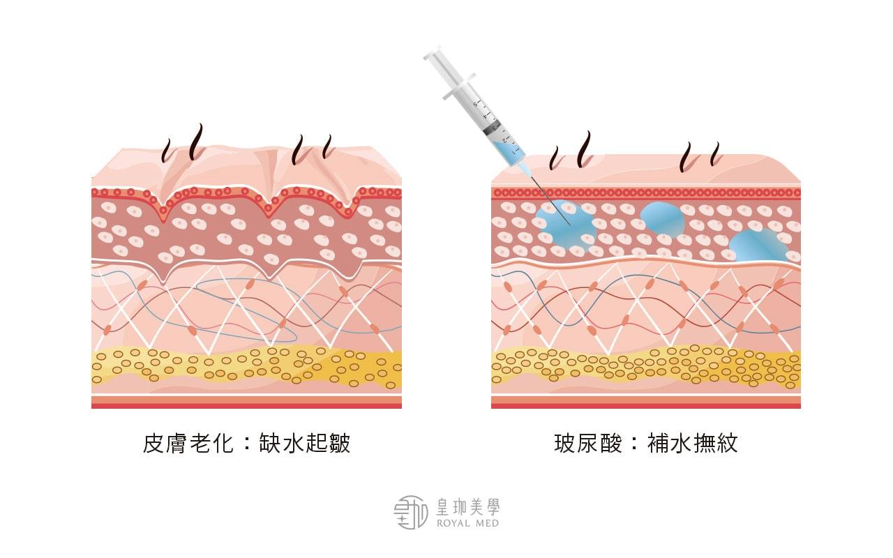 玻尿酸保養-作用與功效