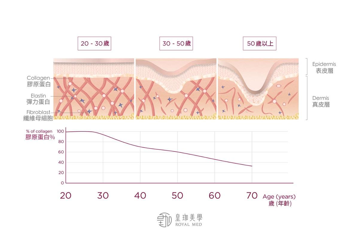 膠原蛋白流失是肌膚老化的關鍵