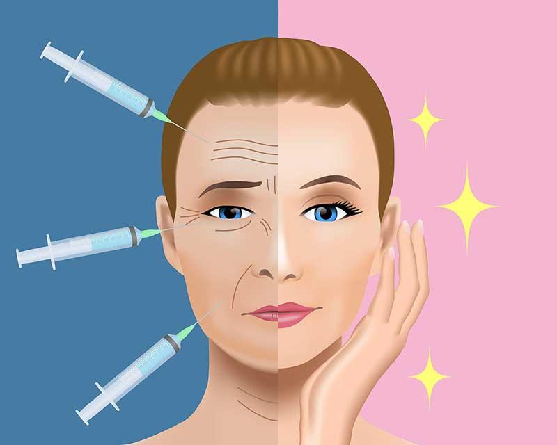 肉毒桿菌功能-除皺、瘦臉、瘦小腿