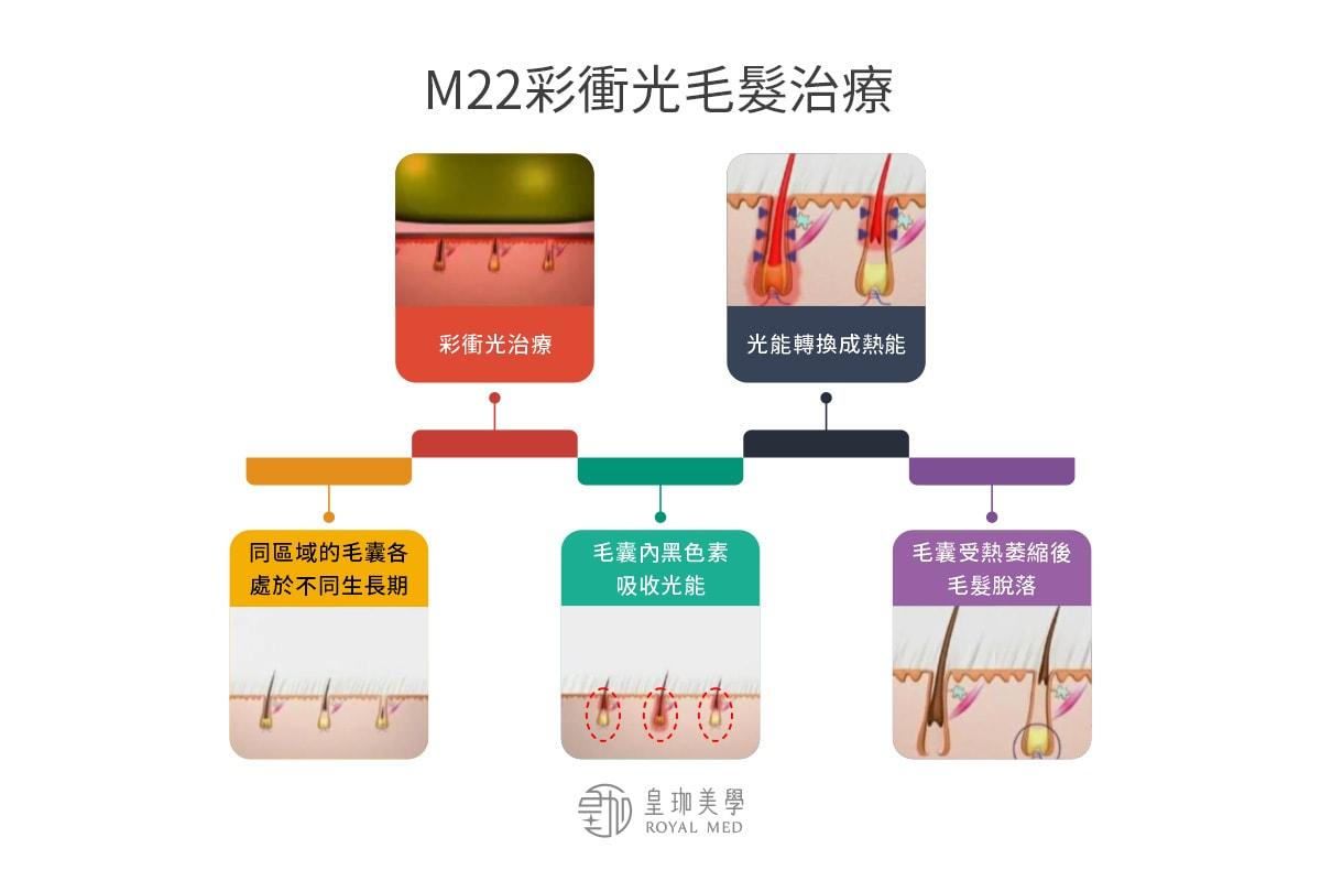 M22彩衝光毛髮治療