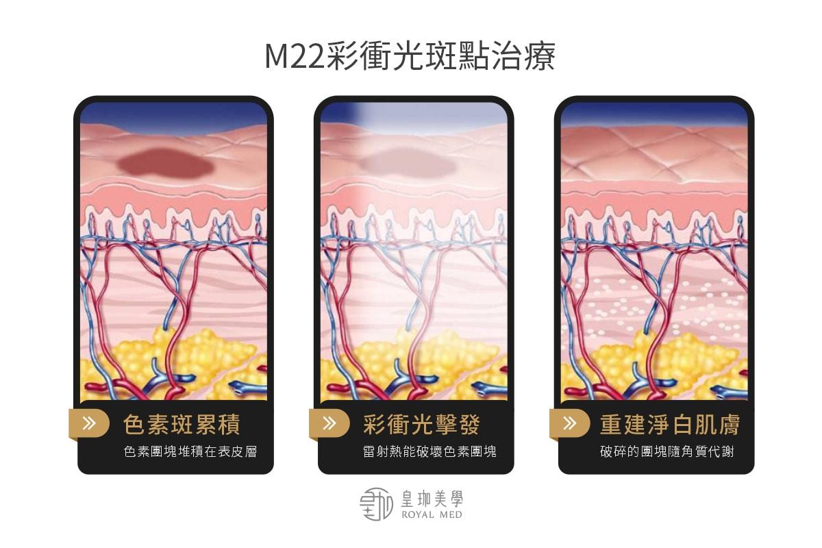 M22彩衝光斑點治療