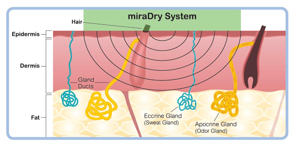 miraDry清新微波精準傳遞專利微波熱能