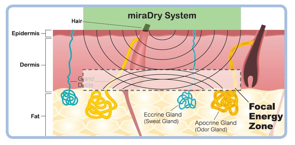 miraDry清新微波能量聚焦於特定區域