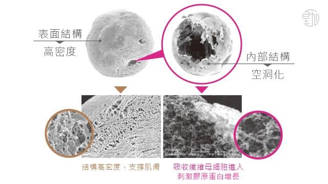 AestheFill®艾麗斯(精靈針)孔性微球