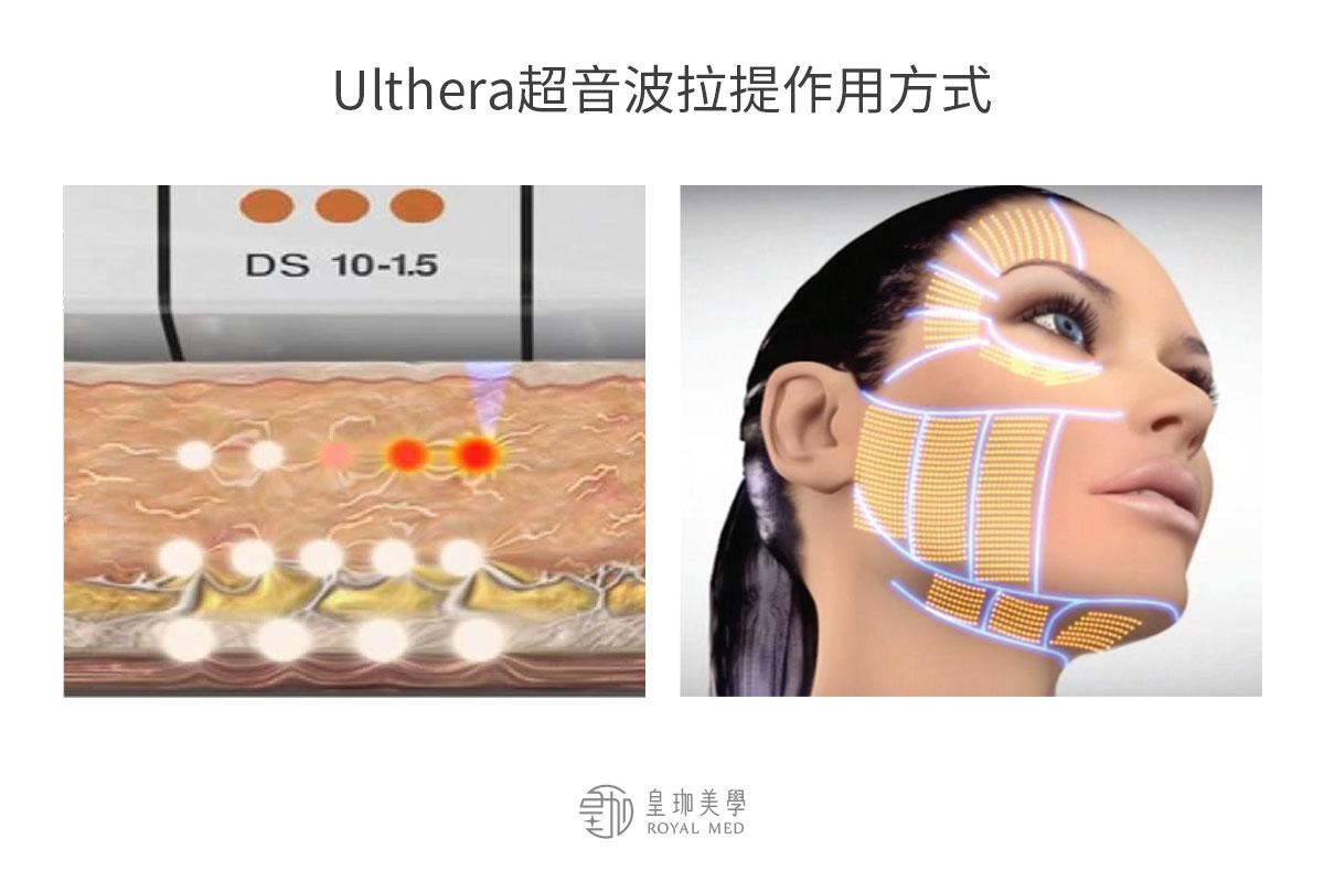 Ulthera超音波拉提是什麼?