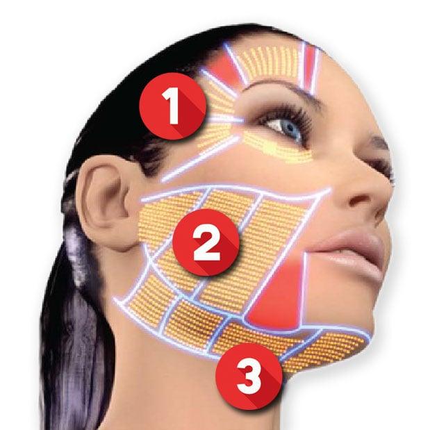 Ulthera音波治療發(條)數建議