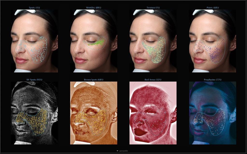 肌膚檢測儀VISIA技術特色