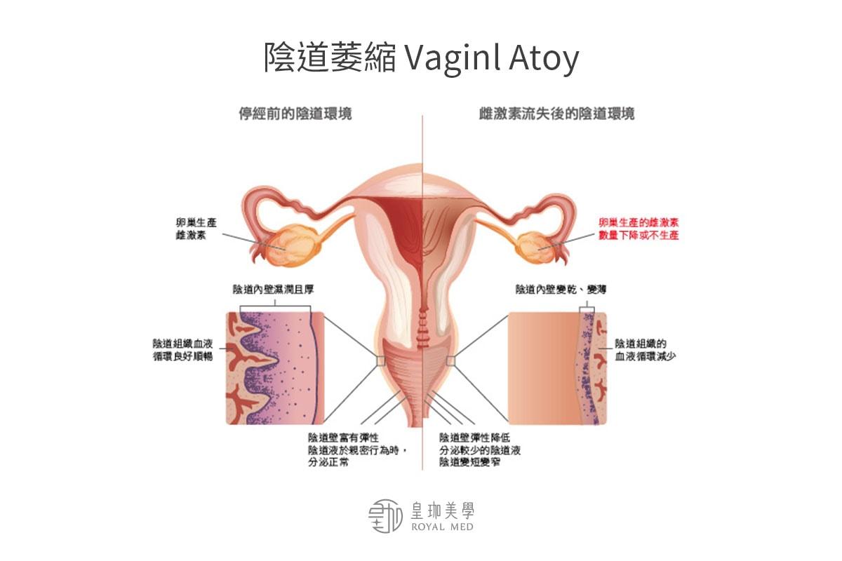 陰道自然老化.鬆弛、乾澀與缺乏彈性